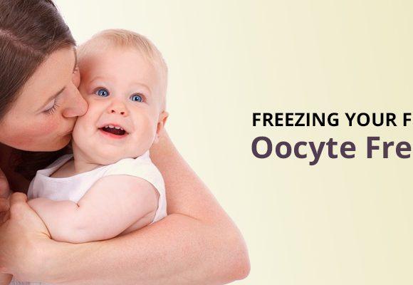 Oocyte Freezing
